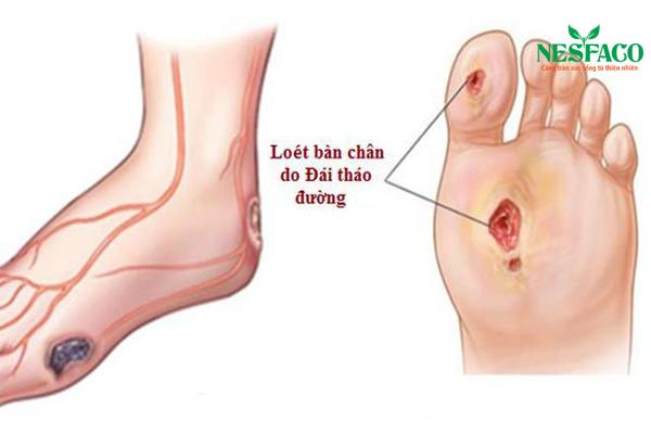 điều trị loét bàn chân