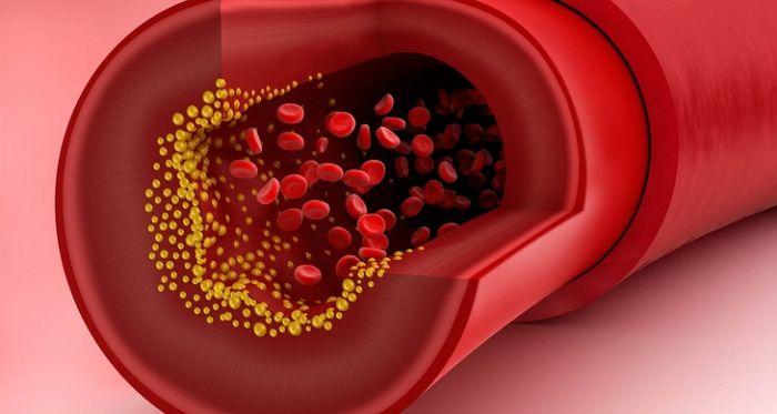 Khái quát về bệnh xơ vữa mạch máu
