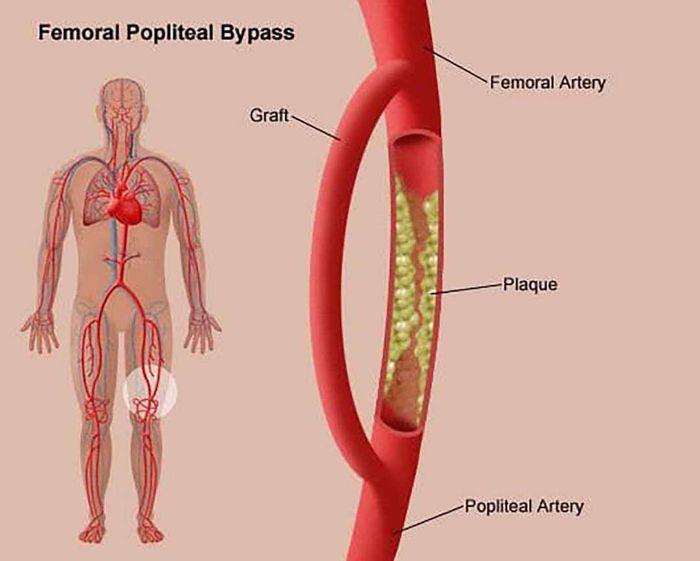 Nguyên nhân dẫn đến bệnh động mạch ngoại biên là gì?