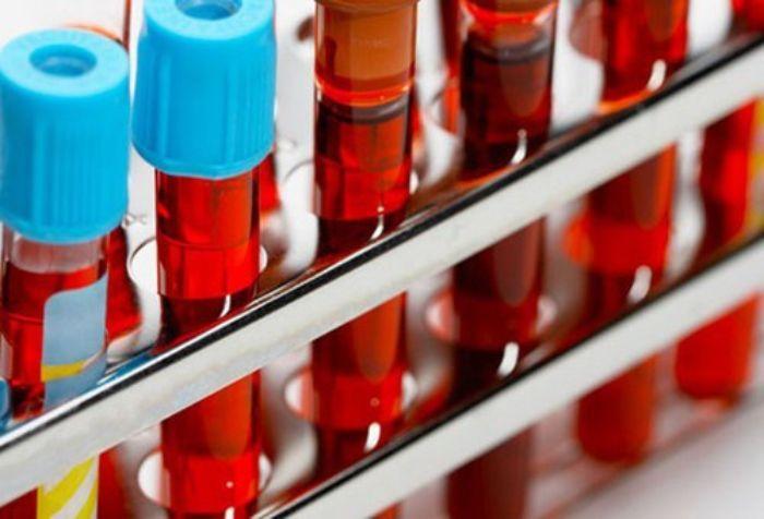 việc xét nghiệm đo độ nhớt máu có giá trị vô cùng lớn trong việc đánh giá các bệnh lý huyết khối