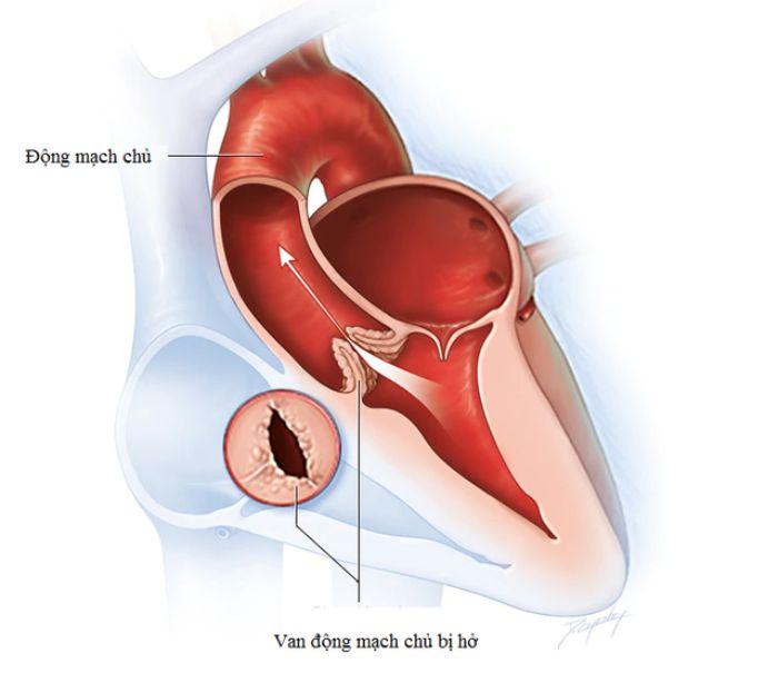 Một số bệnh thường gặp ở động mạch hiện nay như hở van động mạch chủ
