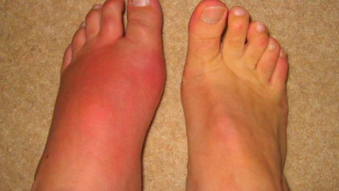 Khi lạm dụng thì nó sẽ khiến cho các đầu ngón chân, ngón tay bị phình to, cơ bắp bị suy yếu