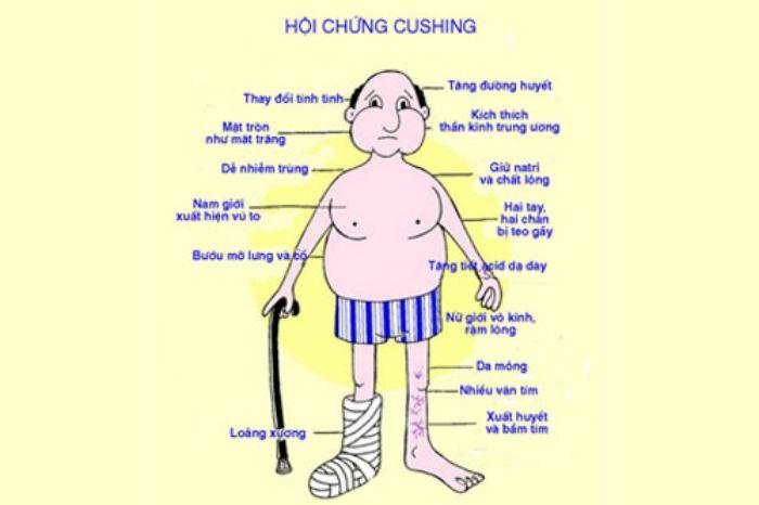 Hội chứng Cushing là tình trạng vỏ tuyến thượng thận bị rối loạn chức năng