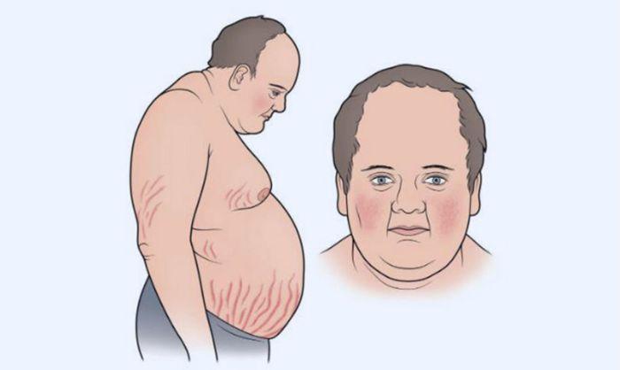 Nguyên nhân gây nên hội chứng Cushing