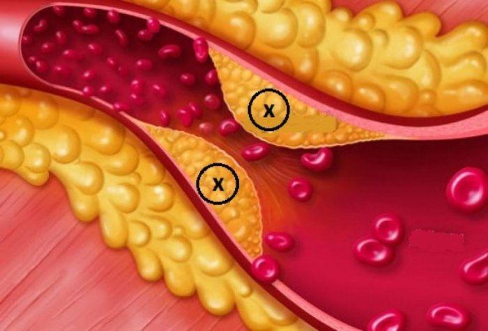 Rối loạn lipid máu là gì?