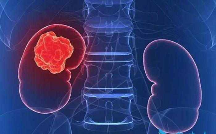 Ung thư thận là bệnh lý mãn tính ở thận và tổn tại ở nhiều dạng
