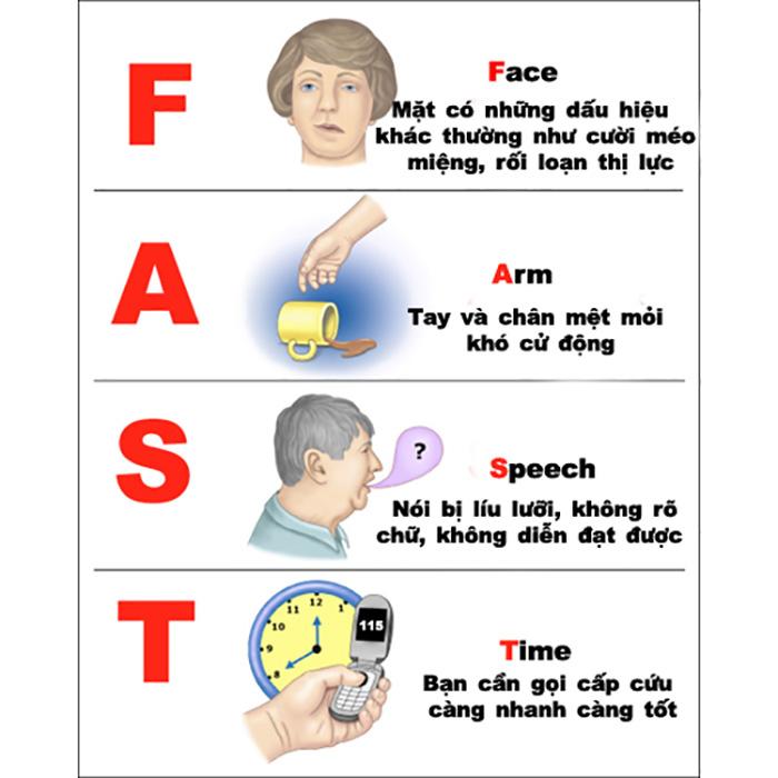 Nguyên tắc FAST trong cấp cấp người cao huyết áp