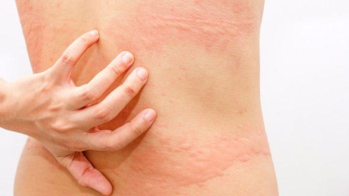 Khi sử dụng thuốc kháng viêm không chứa steroid, bệnh nhân có thể gặp phải những tác dụng phụ như nổi mề đay, ban da