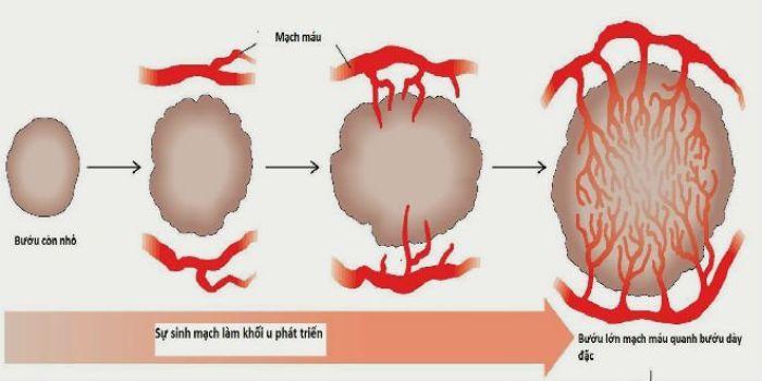 Tăng sinh mạch máu có vai trò gì đối với khối u?