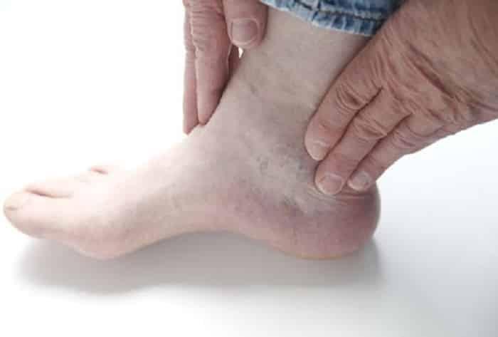 Người bệnh tiểu đường thường không phát hiện các tổn thương ở chân tay của mình