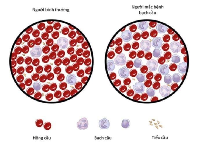 Bạch cầu tăng cao gây ra bệnh ung thư máu