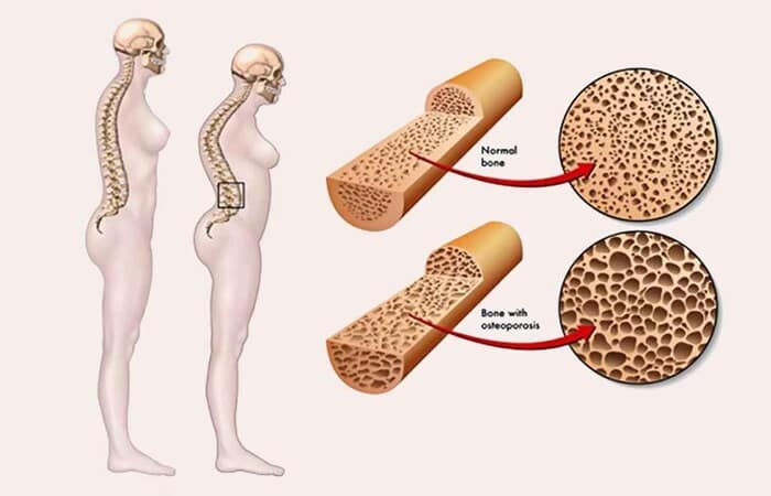 Loãng xương là biến chứng thường gặp ở người bệnh tiểu đường