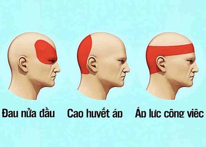 Cách nhận biết đau đầu do cao huyết áp