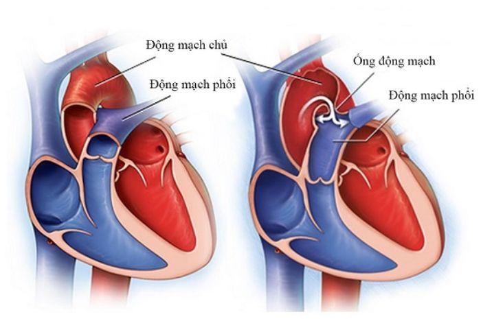 Hình ảnh mô phỏng động mạch trên cơ thể người