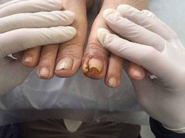 Những biến chứng tiểu đường ở bàn chân