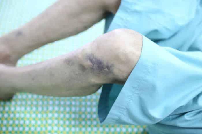 Bệnh nhân bị giảm tiểu cầu thường xuất hiện các vết bầm tím ở vùng chân