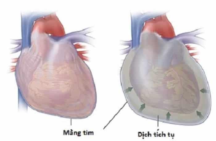 Đau tức ngực còn là tiếng còi báo động của căn bệnh viêm màng ngoài tim