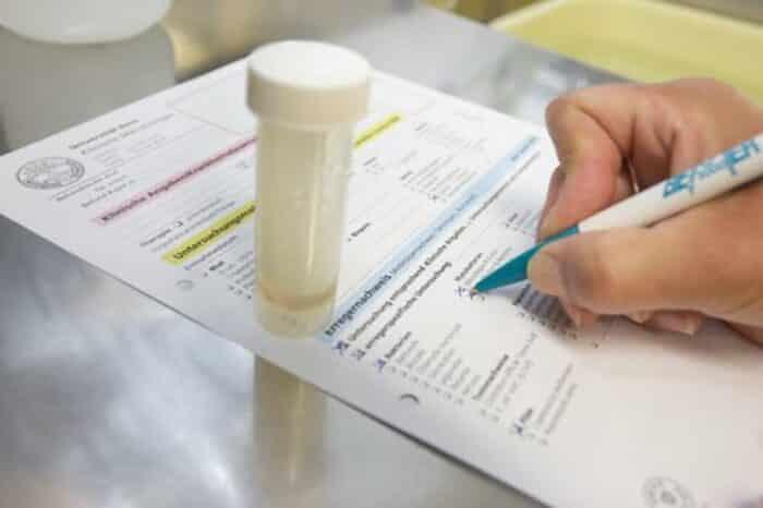 kiểm tra lượng Glucose gắn với Hemoglobin