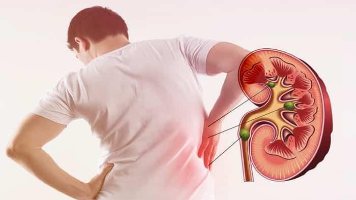 Sử dụng thuốc trị tiểu đường lâu dài có thể khiến thận suy yếu