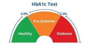 Chỉ số Glycated Hb là gì?