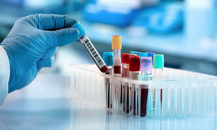 Xét nghiệm máu là việc cần thiết để xác định tình trạng tiểu đường nhiễm toan ceton