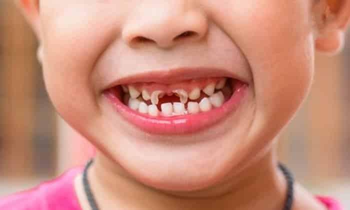 Sử dụng đường Fructose không đúng có thể gây sâu răng