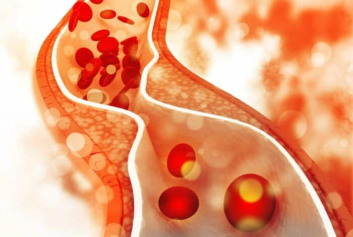 Chất xơ sẽ hỗ trợ làm giảm mỡ máu và cholesterol có hại