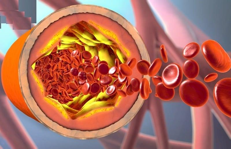 Mỡ máu cao ảnh hưởng đến sức khỏe người bệnh