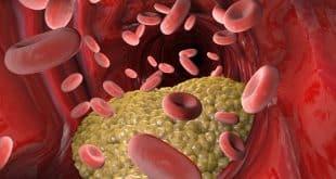 Bệnh viêm mạch máu có một số điểm đặc trưng dễ nhận biết