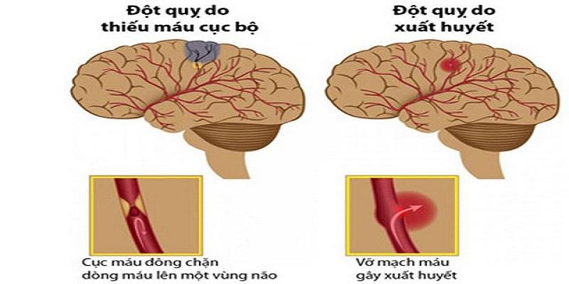 10 nguyên nhân tai biến mạch máu não bạn cần biết