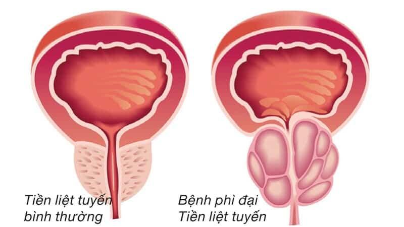 Bệnh lý tuyến tiền liệt có thể gây đái ra máu