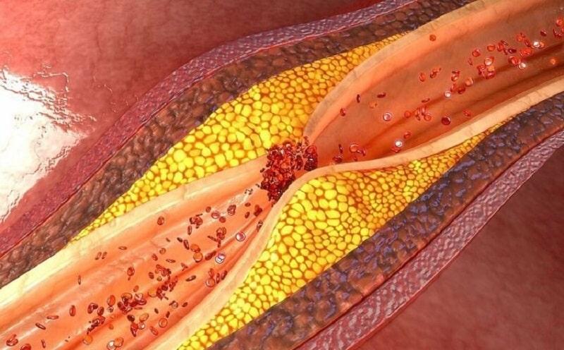 Cần phòng tránh bệnh máu nhiễm mỡ ngay từ đầu