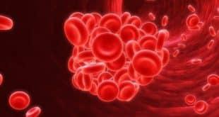Ảnh đại diện Bệnh thiếu máu tán huyết