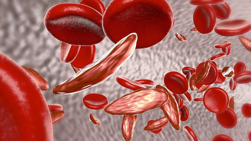 Bệnh thiếu máu tán huyết vô cùng nguy hiểm