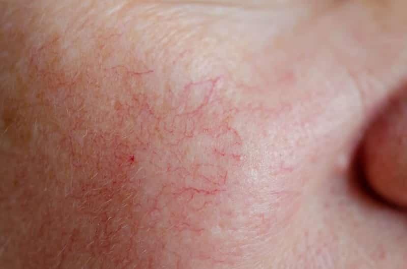 Giãn mao mạch dưới da mặt là bệnh lý nhiều người gặp phải