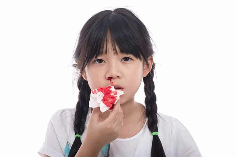 chảy máu mũi nên làm gì