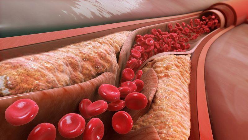 chỉ số LDL cholesterol trong máu là gì