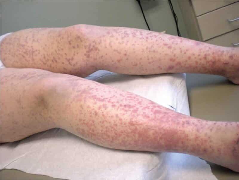 Bạn có thể nhận diện tình trạng này thông qua những vết xuất huyết dưới da