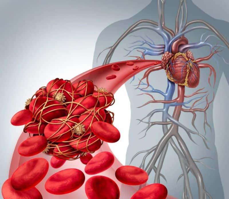 Mắc bệnh máu đặc phải làm sao?