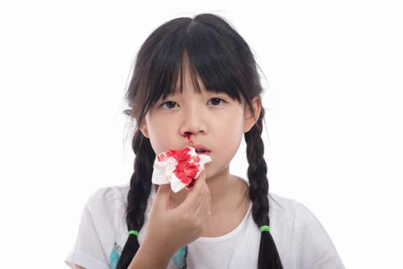 Bệnh máu loãng là bị chảy máu trong thời gian dài và rất khó để cầm máu