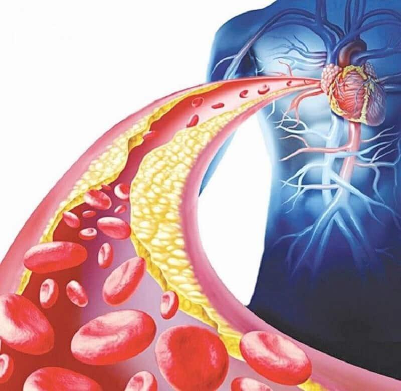 Có nhiều nguyên nhân dẫn tới bệnh lý máu nhiễm mỡ