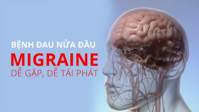 Nhức đầu Migraine cực kỳ nguy hiểm