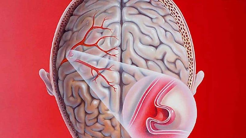 Có rất nhiều nguyên nhân dẫn đến chứng phình mạch máu não