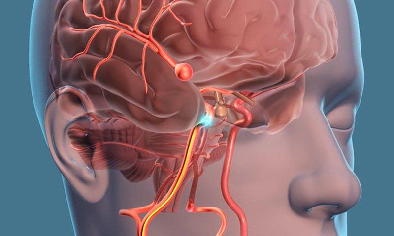 Vỡ mạch máu não có nguy hiểm không?