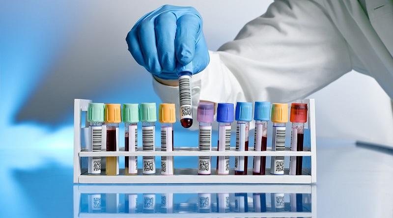 Trong nhiều trường hợp, bác sĩ sẽ thực hiện xét nghiệm creatinin