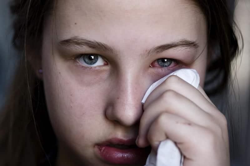 Chú ý thói quen sinh hoạt tránh dẫn đến việc bị xuất huyết niêm mạc dưới