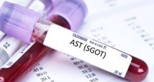 Chỉ số AST (SGOT) là gì