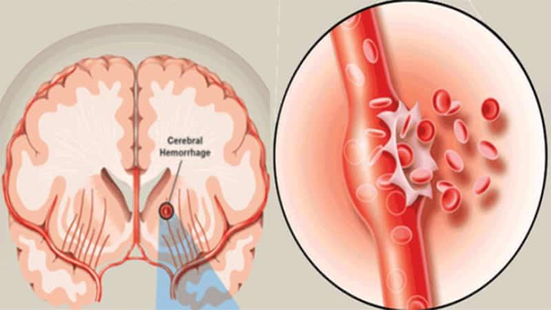 Phình động mạch não
