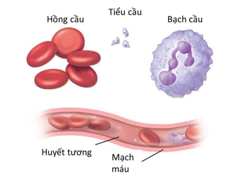 Thiếu máu bạch cầu có nguy hiểm không