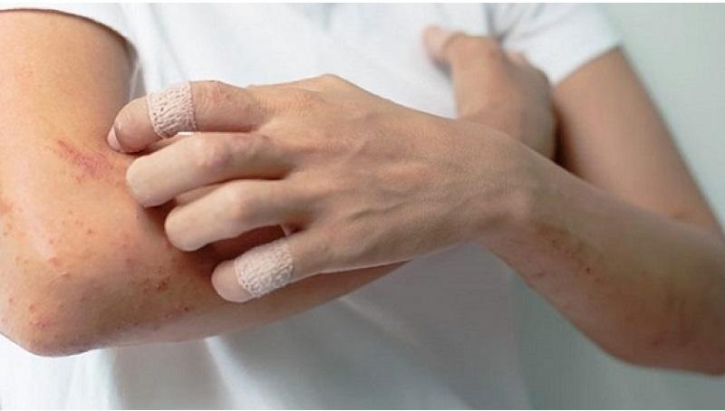 Viêm mao mạch dị ứng